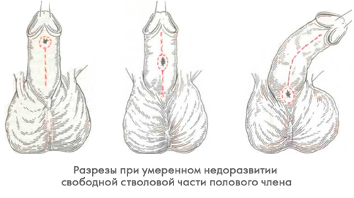 Операция на сосудах члена