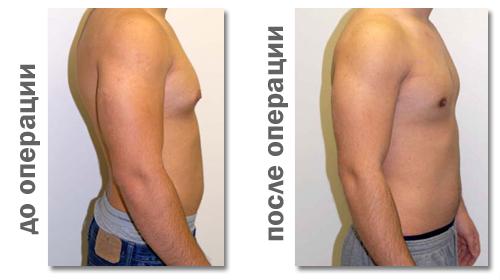 Большая грудь силиконовая до и после