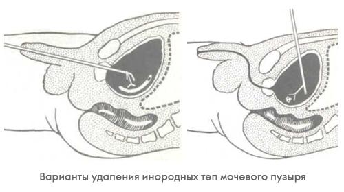 Инородное тело в мочевом пузыре