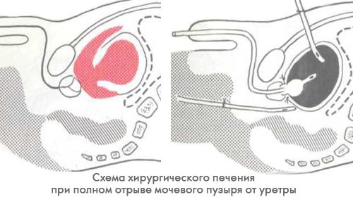 Повреждения мочевого пузыря