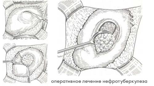 Туберкулез почки