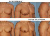 Гинекомастия – увеличения груди у мужчин
