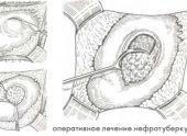 Туберкулез почки (нефротуберкулез)